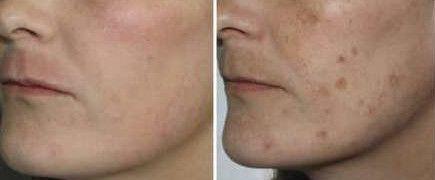 Причини появи пігментації на обличчі. Лікування, засоби